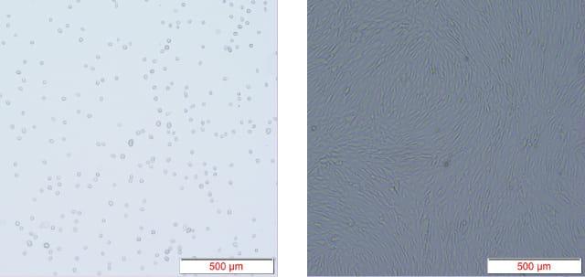 培養した細胞の拡大画像